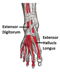 Extensor Tendonitis - inflammation of the tendons causing Top of Foot Pain