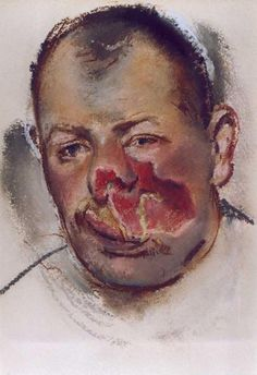 Henry Tonks watercolour documenting facial injuries of the First World War.