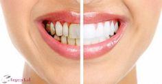 #فوائد_ونصائح العناية بالاسنان وازالة جير الاسنان في المنزل
