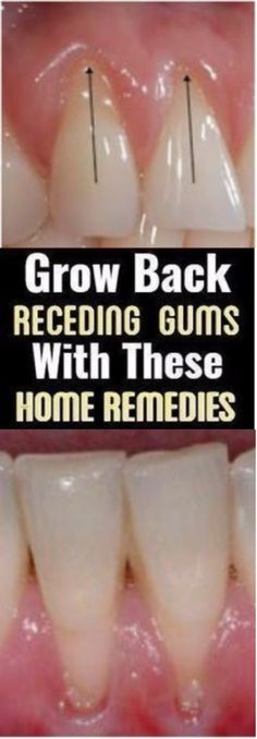 What bothers the dentist mostly is the problem with the 'receding gums'. No matter how irrelevant this problem might seem, receding gums can cause unbearable pain. In fact, they can withdraw and ma… Natural Remedies For Allergies, Natural Headache Remedies, Natural Remedies For Anxiety, Health And Wellness Quotes, Health Advice, Wellness Tips, Teeth Health, Dental Health, Oral Health