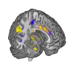 Doorbraak: hersenscans  tonen pijn  Mensen bezoeken de dokter het meest met klachten over pijn, maar die kon tot nu toe niet waarnemen hoe erg die pijn was. Wetenschappers van de universiteit in Colorado, in de VS, zijn er in geslaagd 'pijn' voor het eerst in beeld te brengen op hersenscans. Dankzij die doorbraak kunnen ze de behandeling voor verschillende soorten pijn verbeteren.