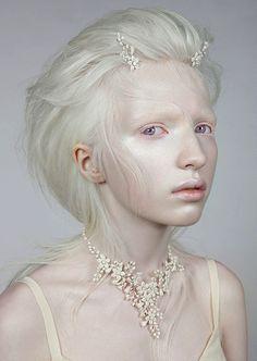 quirkyprotagonist: Nastya Zhidkova - albino... | For each beloved hour...