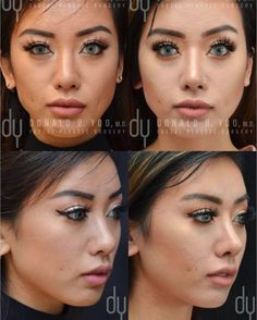 Pretty to prettier ⭐️ My gorgeous patient Lynn underwent a revision Asian rhinoplasty with rib cartilage. Pictures were taken at 3 months. #drdonyoo #rhinoplastyspecialist #asianrhinoplasty - 💉 Dr. Yoo performed a revision Asian rhinoplasty with rib cartilage. 📆 The after pictures were taken 3 MONTHS after the surgery 📍 Office: Beverly Hills, California 🌍 Website: www.donyoomd.com 🎥 Youtube: www.youtube.com/DrDonYoo 📬 Email: info@donyoomd.com 📞 Phone: (310)275-0412