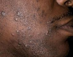 """Razor Bump Treatment For Black Men: How-To Make Them Disappear """"…to help remove and loosen dead skin and hairs [as well as] to keep them from curling back into the skin after shaving, use a soft bristle brush after shaving…. Ingrown Facial Hair, Infected Ingrown Hair, Ingrown Hair Remedies, Pimples Remedies, Razor Bump Treatment, Shaving Bumps, Bump Hairstyles, Haircuts, Face Hair"""