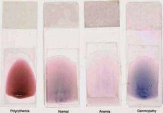 Colour anemia