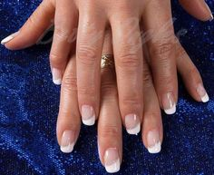 Betty Ongles