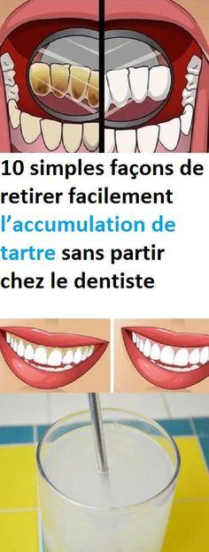 10 simples façons de retirer facilement l'accumulation de tartre sans partir chez le dentiste