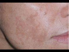 Vitamina C Serum Ideal Para Manchas Acné Arrugas Y Revitalizar La Piel Día A Día Youtube Quitar Manchas Cara Quitar Manchas Manchas En La Cara