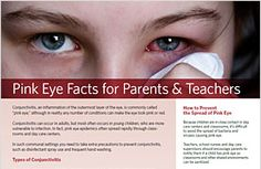 Pink Eye Facts for Parents & Teachers. A one-page guide offering tips for preventing the spread of pink eye - AllAboutVision.com