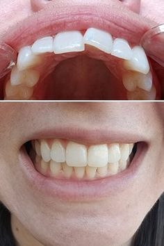 Candid: Clear Aligners Online That Straighten Teeth At Home - Candid Teeth Alignment, Clear Aligners, The Glow Up, Teeth Straightening, Health And Beauty Tips, Healthy Beauty, Glow Up Tips, Glo Up