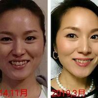 美容整形不要 シワとたるみを改善できる顔体操教室 美容整形 顔 体操