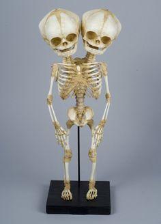 Conjoined Y-Baby Skeleton (Replica)