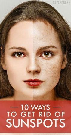 Acne scars facial care, dark spots on face, don't worry, baking soda, beauty Black Spots On Face, Age Spots On Face, Brown Spots On Skin, Dark Spots, Sun Spots On Skin, Mascarillas Peel Off, How To Get Rid, How To Remove, Beauty Secrets