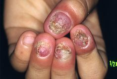 Diseases Of The Nails Can Cause Significant Social Psychological And Physical Damage To An