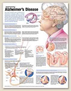 Alzheimer's Disease-Clinical Poster.  Pinned by SOS Inc. Resources.  Follow all our boards at http://pinterest.com/sostherapy  for therapy resources.