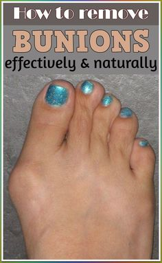 Get Rid Of Toxin Learn how to remove bunions effectively and naturally. - Learn how to remove bunions effectively and naturally. How To Remove Bunions, Get Rid Of Bunions, Herbal Remedies, Health Remedies, Natural Remedies, Holistic Remedies, Hair Loss Remedies, Feet Care, How To Get Rid