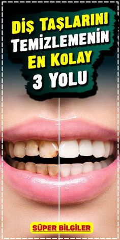 The definitive solution un Get rid of the calculus with this method. Adhesive and soft to the teeth, gums, dental fillings and dental prostheses. Wellness Tips, Health And Wellness, Herbal Remedies, Natural Remedies, Dental Fillings, Constipation Remedies, Restless Leg Syndrome, Teeth Care, Calculus