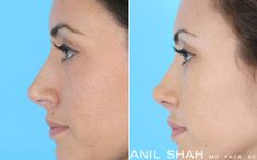 Female Rhinoplasty Patient 1- Side view