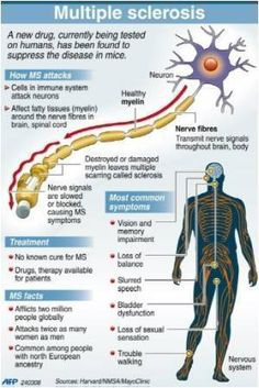 Infographics on Multiple Sclerosis Treatment | Medindia