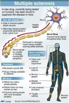 Infographics on Multiple Sclerosis Treatment | Medindia