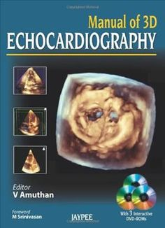 Manual of 3D Echocardiography  by V Amuthan