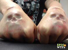Skull knuckle implants