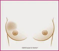 SIGNOS DEL CÁNCER DE MAMA Hinchazón, enrojecimiento y cambio en el color o la textura de la piel de los pechos.
