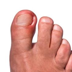 Ways To Treat Ingrown Toenails