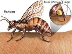 How to Treat Bee Sting Allergy: Stinging insects, such as honeybees, can cause severe allergic reactions by injecting venom into the skin of a person who is allergic to proteins contained within the venom. Asthma Clinic, Allergy Clinic, Allergy Asthma, Wasp Stings Relief, Bee Sting Allergy, Treating Bee Stings, Hives Remedies, Allergy Shots, Insects