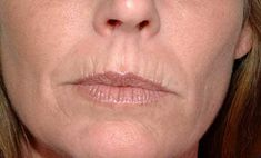 If you've got some lip wrinkles due to any cause, here are some of the natural home remedies for upper lip wrinkles to help you with. Lip Wrinkles, Prevent Wrinkles, Smokers Lines, Home Remedies For Wrinkles, Get Rid Of Warts, How To Line Lips, Upper Lip, Wrinkle Remover, Quites