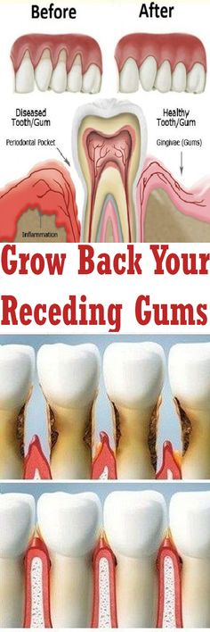Left untreated, gum disease can cause receding gums, systemic infections and loss of teeth. Here are 7 natural home remedies to get your smile back!
