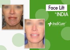 We are pleased to share one of our patients amazing results post her #facelift in India. What do you think about the results? Comment below! #beforeafter #cosmeticsurgery #plasticsurgery #medicaltourism Face Lift Cost, Face Plastic Surgery, Board Certified Plastic Surgeons, India, Amazing, Health, Goa India, Health Care, Indie