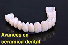 Avances en cerámica dental | OVI Dental
