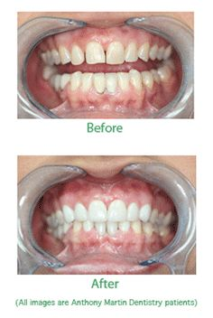 What to Expect From the Dental Veneers Procedure