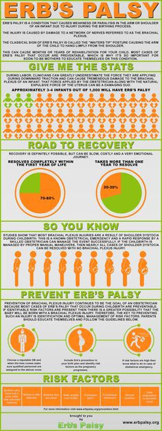Infographic Guide To Erb–Duchenne Palsy