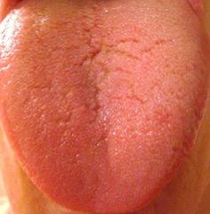 Berry Diaries: What your Tongue says about You *UPDATED*