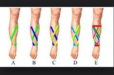 How to tape shin splints.