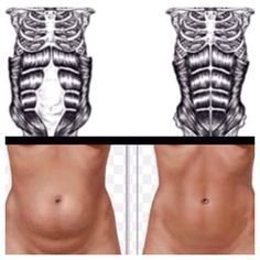 Fitness Motivation : Exercises for Diastasis Recti. - All Fitness Fitness Workouts, Fitness Diet, Health Fitness, Fitness Humor, Funny Fitness, Fitness Gear, Workout Routines, Muscle Fitness, Fitness Logo