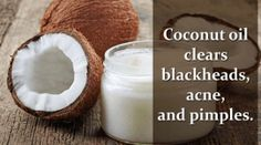 Coconut Oil Works Wonders for Your Face! Know its Beauty Benefits Coconut Oil For Face, Organic Coconut Oil, Clear Skin Overnight, Pimples On Forehead, Clear Blackheads, Stretch Mark Remedies, Home Remedies For Pimples, Skin Care Masks, Home Remedies