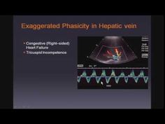 Doppler Ultrasound of the Liver and Portal Hypertension Right Sided Heart Failure, Portal Hypertension, Ultrasound, Youtube, Crunches, Youtubers, Youtube Movies