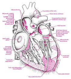 Cardiac Disorders & Diseases