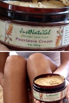 I used this psoriasis cream because I have psoriasis on my legs, arms and neck and nothing pharmaceutical- was working and was too expensive. I found that the ingredients in this cream worked excellently for inflammation! My skin cleared within four weeks between the psoriasis soap and using the psoriasis cream.