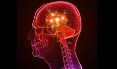 La epilepsia puede derivar a mayores anormalidades en el cerebro con el tiempo