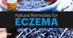 Eczema causes dry, red, itchy skin that can blister. Try these natural eczema remedies and eczema treatments to help bring healing and relief!