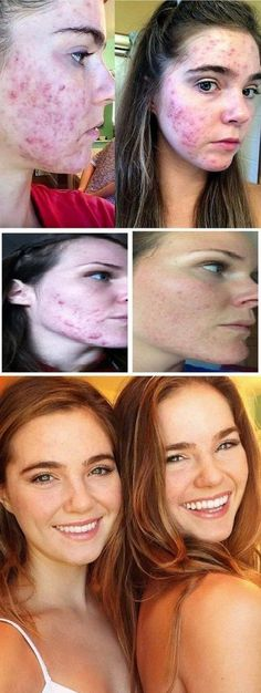 Cystic acne has been a problem for many people since it is caused by cyst; this is why it is also called as cystic acne. It is a much severe and acute condition of acne; cystic acne is nothing but some lumps of inflammation. Hormonal Acne Remedies, Natural Acne Remedies, Greasy Skin, Oily Skin, Cystic Acne Treatment, Homemade Acne Treatment, Easy Diets, How To Get Rid Of Acne