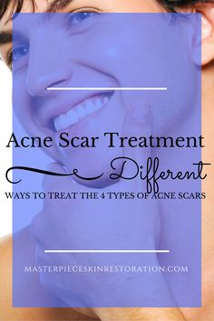 There are 4 types of acne scars. To get the best scar reduction, each type has to be treated differently. Click through to learn more!