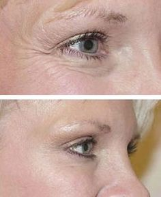 Is this for real? Eye exercise to reduce eye bags?