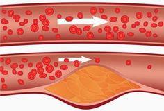 Prirodni lijek: Sirup koji uklanja masnoću iz krvi