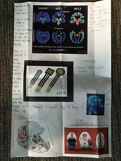 CTE/concussion design for measuring impact.