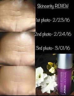 Renew in one week - Get in on the pre-launch prices before March Regular price March 14 - buy at off retail - earn loyalty points for FREE product. Wrinkled Skin, Medical Technology, Rosacea, Perfect Skin, Skin Problems, Good Skin, Life Is Beautiful, Skin Care, Loyalty